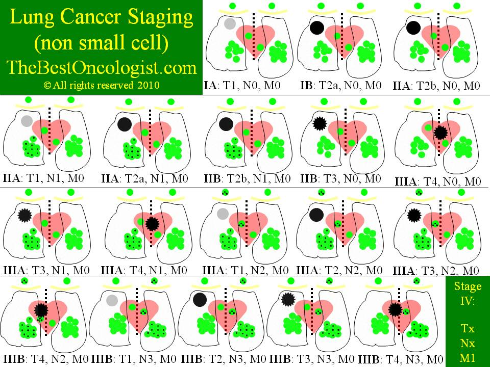 Lung Cancer Staging TNM